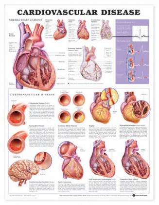 Szív és érrendszeri megbetegedések 50,8x66cm